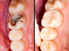 Tooth decay is mass spread teeth disease, which almost everyone had. For best results and preventing caries appearance SofiaDental recommends regular Dental/Check Ups. Teeth Health, Healthy Teeth, Healthy Life, Health Heal, Oral Health, Stay Healthy, Healthy Food, Alternative Heilmethoden, Alternative Health