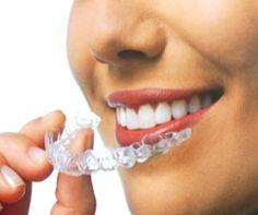 Kieferorthodädie, Fachzahnarzt, Zahnspangen, Dentalhygiene, Kieferorthopäde, aesthetic dentistry, bleaching, white teeth, dental brace