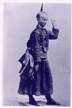 """Minnie Woolsey """"Koo Koo The Bird Girl""""  was an American side show performer. Woolsey suffered from a rare skeletal disorder called Virchow-Seckel syndrome."""