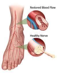 t a Good Leg free from Neuropathy Looks Like