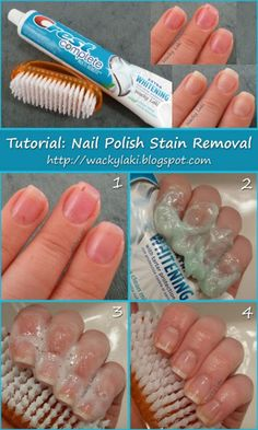 Toothpaste Stain Removal - Certain nail polishes can really stain your nails in a way that cannot be cleaned by acetone. An easy way to combat this is to massage whitening toothpaste onto your nails, scrub them and rinse off (repeat if necessary).