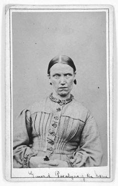 Fotografie dei malati del West Riding Pauper Lunatic Asylum 13