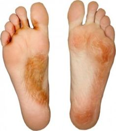 If athlete's foot appears don't worry. Check out these good natural cures that you can use to get rid of the infection before you know it. Discover more about my athletes foot natural remedy.