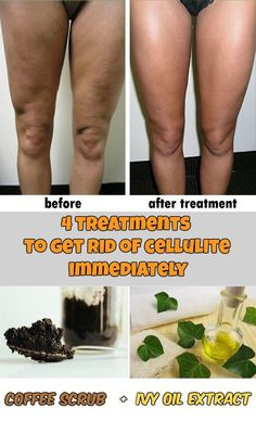 4 treatments to get rid of cellulite immediately