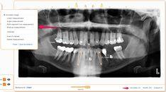 Measurement Tools For Curve Image - Curve Dental
