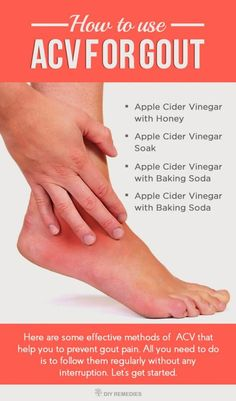 drugs used to cure gout reduce uric acid and gout list foods gout sufferers can eat