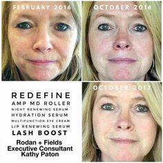 Rodan and Fields // Rodan and Fields Consultant // Rodan and Fields Opportunities / Rodan and Fields Regimens // Rodan and Fields Skin Care //  beauty // skin care products // anti-aging // social media // mens fashion // women's fashion // melasma // sun spots // acne // fine lines and wrinkles // eye cream // Lash Boost // sensitive skin // sun damage // age spots //