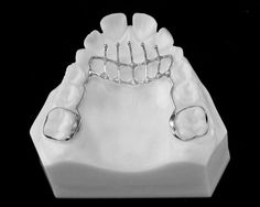 Thumb habit appliance ( palatal crib) Orthodontic Appliances, Mouth Guard, Orthodontics, Crib, Bucket Bag, Teeth, Bags, Crib Bedding, Handbags