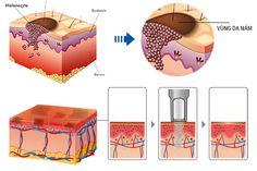 #melasma #laser #trinamda http://trinamlaser.com/cach-dieu-tri-nam-bang-laser-co-cong-nghe-nao-tot-cho-da.html