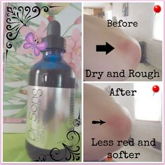 Dr.Song Rosehip Oil Organic all natural.