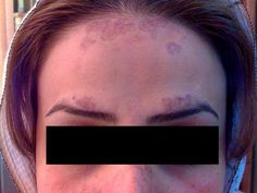 Lichen planus pigmentosus treatment and oral scalp Lichens planus is a skin sickness brought on because of cell intervened invulnerable reaction. It can coincide with a few other insusceptible issu…