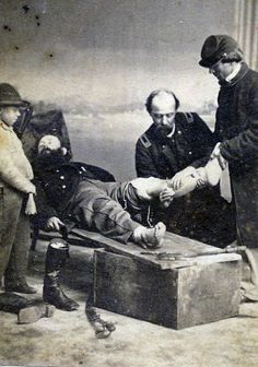 Civil War Amputations | war drives innovation in medicine as in weaponry those wounded in war ...