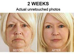 Mom Reveals Secret to a De-Wrinkled Face for under $5.   FHD