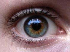 Heterocromia eyes