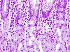 Resultado de imagen para mucosa del colon histologia