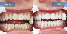 Zoom Teeth whitening at Dr. Michael's Dental Clinic in Dubai