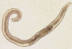 Enterobius vermicularis (pinworm).  Note cervical alae at anterior end; these are unique to pinworms.