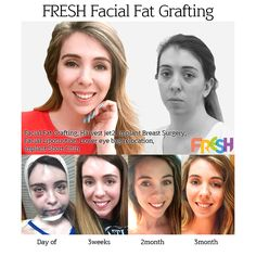 Fresh plastic surgery in south korea korean plastic surgery the best plastic surgery in Korea the best plastic surgery clinic in korea korean surgery before after top korean plastic surgery plastic surgery cosmetic surgery facial fat grafting before and after baby face vline face breast fat grafting eye bag relocation Harvest-jet2 short chin implant breast implant