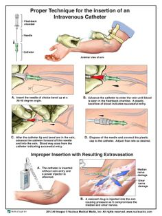 Proper IV Cath Insertion