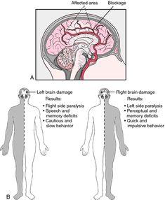 (slechts enkele) gevolgen van hersenbloedingen...