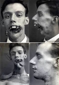 Willie Vicarage, who was suffering from facial wounds that he sustained in the Battle of Jutland in 1916, was one of the first men to receive facial reconstruction using plastic surgery. Read more at http://www.oddee.com/item_98767.aspx#tzDkoIjARPLHpBej.99
