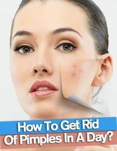 Get Rid of Pimples Overnight Naturally and Fast