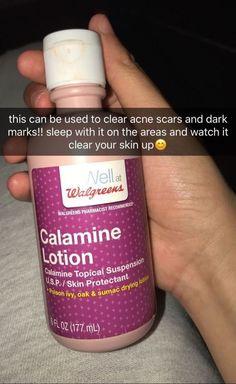 Calamine lotion can clear acne and dark marks Beauty Care, Beauty Skin, Diy Beauty, Face Beauty, Homemade Beauty, Beauty Advice, Beauty Tricks, Beauty Habits, Beauty Secrets