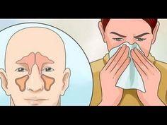 El increíble remedio para quitar la congestión nasal y la sinusitis en un día
