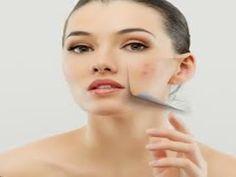 30 Kecantikan Ideas Face Acne How To Treat Acne Cystic Acne Treatment