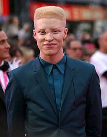 23 Stunning Models With Genetic Disorders Who Broke Conventional Beauty Standards - bemethis Shaun Ross, Unique Faces, Perfect Figure, Cosmetic Companies, Best Photographers, American Actors, Genetics, Disorders, Fashion Models