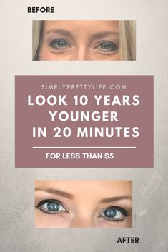 Look 10 Years Younger In 20 Minutes Beauty Tips Beauty Skin 20 makeup hacks in 5 minutes - Makeup Hacks Beauty Skin, Health And Beauty, Beauty Care, Face Beauty, Healthy Beauty, Lotion, Under Eye Bags, Eyes Problems, Skin Tag