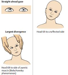 cranial nerve 7 palsy pdf