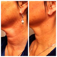 This is MY NECK!  (I like to call this photo 'neck & neck'. =)  After 75 days on Nerium AD.  The before pic was actually taken after I'd used Nerium for 2 weeks(!!) so I think Nerium has helped turn back the clock even more for me -- YAY!  www.Mitchener.Nerium.com  http://jeanmcc.neriumproducts.com