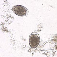 D. latum eggs