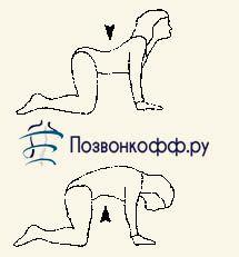 комплекс упражнений при грыже позвоночника