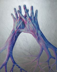 demyelinated hands