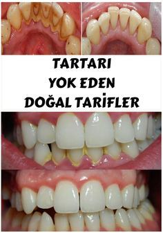 Removing tartar usually required a visit to your dentist, but by applying one of these natural remedies you will be able to remove it yourself in the privacy of your home. Home Health, Health And Wellness, Health Fitness, Natural Home Remedies, Natural Healing, Teeth Care, Skin Care, Health And Beauty Tips, Beauty Tricks