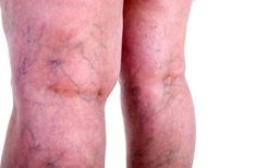 16 Home Remedies For Varicose Veins That Really Work