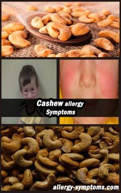 Cashew Allergy Symptoms #cashew #cashewnuts #cashweallergy http://allergy-symptoms.org/cashew-allergy/