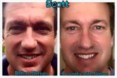 Scott had amazing results too! It's not just for women.  Kikener.nerium.com