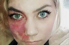 This Woman Really Doesn't Care What You Think About Her Face Birthmark