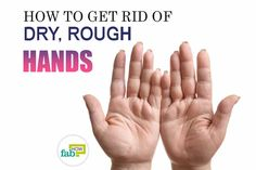 Are your dry hands bothering you? Do you avoid shaking hands with friends or strangers because your hands are so rough and unsightly? Well, you can find some consolation in. Homemade Face Wash, Rough Hands, Dry Skin On Face, Homemade Beauty Tips, Dry Hands, Face Care, Body Care, How To Get Rid, Anti Aging Skin Care