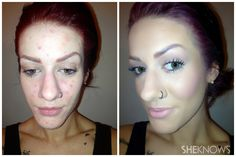 Skin before and after, 9 step-guide to clear skin. make up artist: Kelley Unthank
