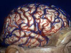 3D Images: Exploring the Human Brain