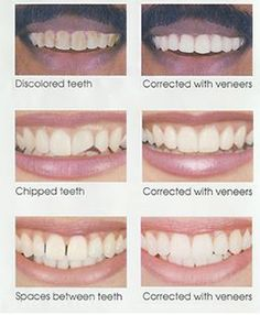 Tooth bonding is used in several different ways but is probably tooth bonding is used in the correction of stained chipped or widely spaced teeth solutioingenieria Gallery