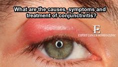 Conjunctivitis when caused by an infection is most commonly caused by a viral infection.Bacterial infections, allergies https://goo.gl/rkedJE #Homeopathytreatment #ConjunctivitisHomeopathy #Conjuctivitistreatment #Homeopathyclinic