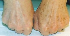 Con este remedio casero podrás blanquear las manchas en la piel, ¡apunta!