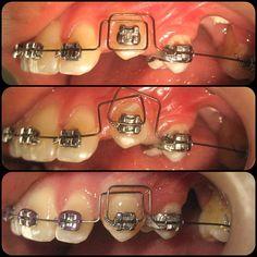 Box Loop antes , durante , después . Calidad de fuerza mejor que cantidad . Felices los tres : paciente , tejidos periodontales y Dr.