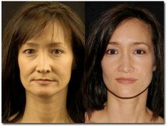 Utilize facial yoga exercises to smooth out face wrinkles and haul up saggy face skin. Facial toning workouts for restoring a wrinkle-free and younger looking skin Skinny Face, Face Transformation, Facelift Without Surgery, Yoga Facial, Natural Face Lift, Facial Exercises, Toning Exercises, Face Skin, Nu Skin