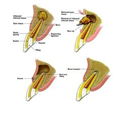 Apicoectomy is a surgical removal of the apical part of the tooth root. Root Canal, Dentistry, Dental, Tooth, Education, Onderwijs, Teeth, Learning, Dentist Clinic